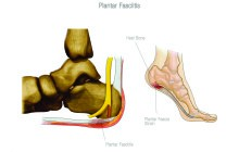 Tired, Achy, Painful Feet? … Don't Let PLantar Fasciitis stop you in your tracks  	By Dr. Kim C. Tran, DC
